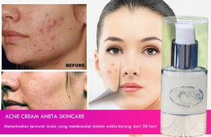 Acne Cream Aneta Skincare